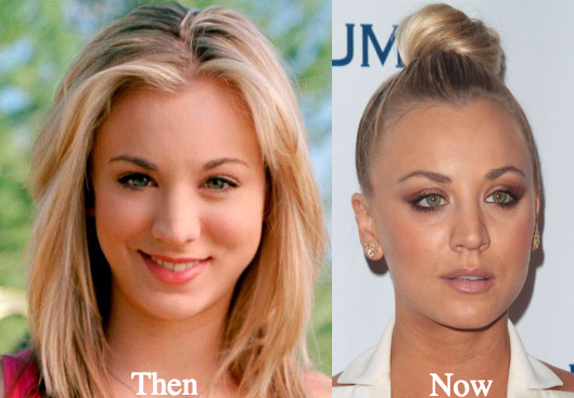 kaley cuoco before and after plastic surgery photo - 1