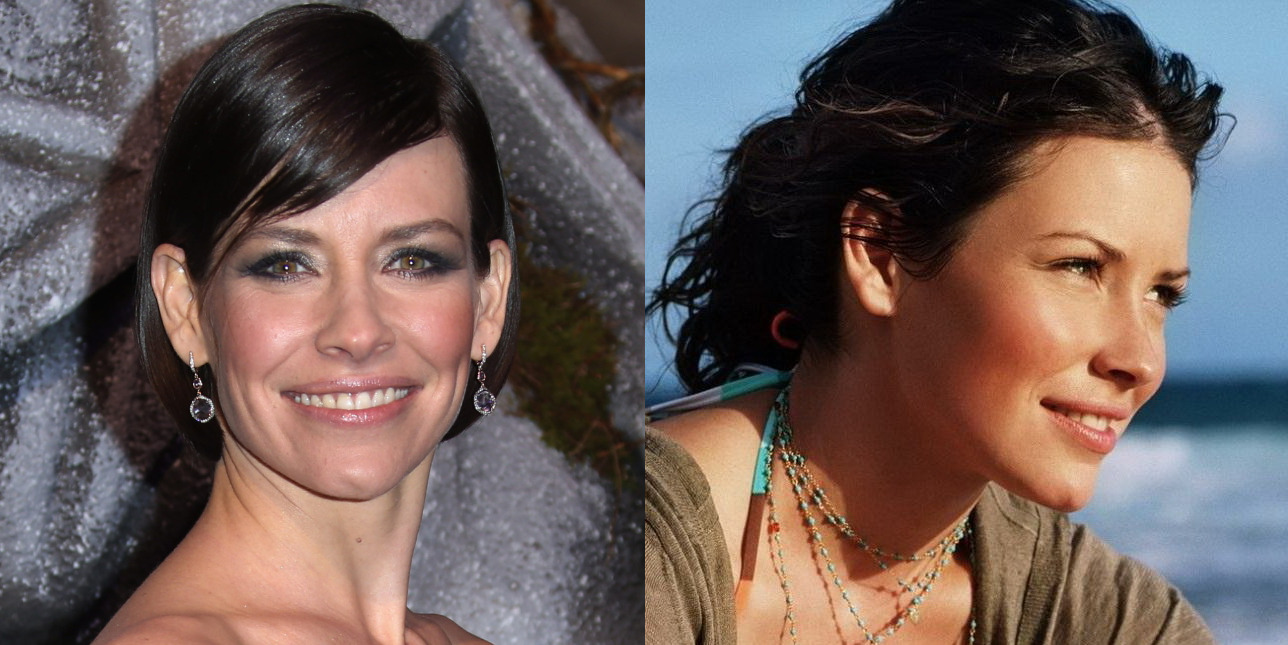 kate beckinsale plastic surgery photo - 1