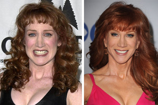 kathy griffin before plastic surgery photo - 1