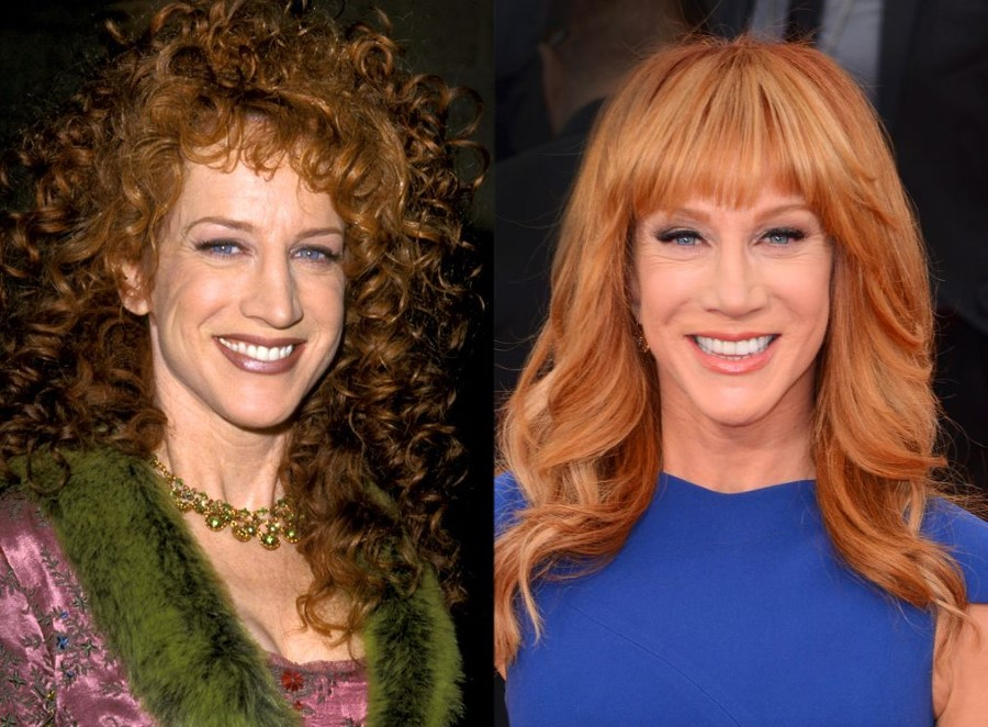kathy griffith plastic surgery photo - 1