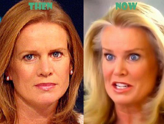 katty kay plastic surgery photo - 1