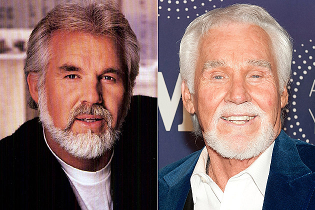 kenny rogers after plastic surgery photo - 1