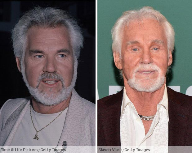 kenny rogers plastic surgery photo - 1