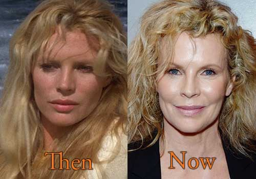 kim basinger plastic surgery photo - 1