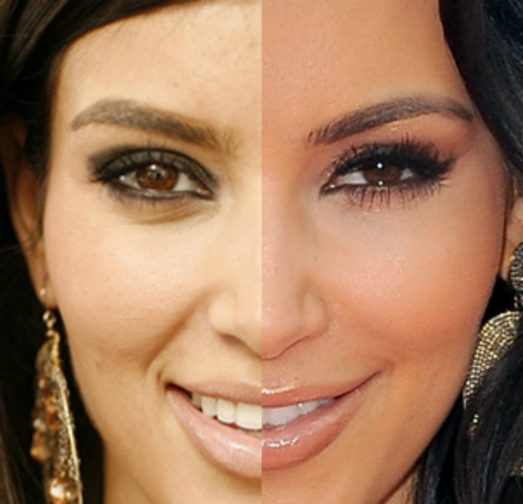 kim kardashian plastic surgery before and after photo - 1