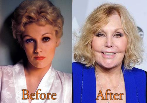 kim novak plastic surgery photo - 1