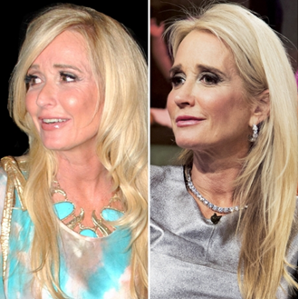 kim richards plastic surgery photo - 1