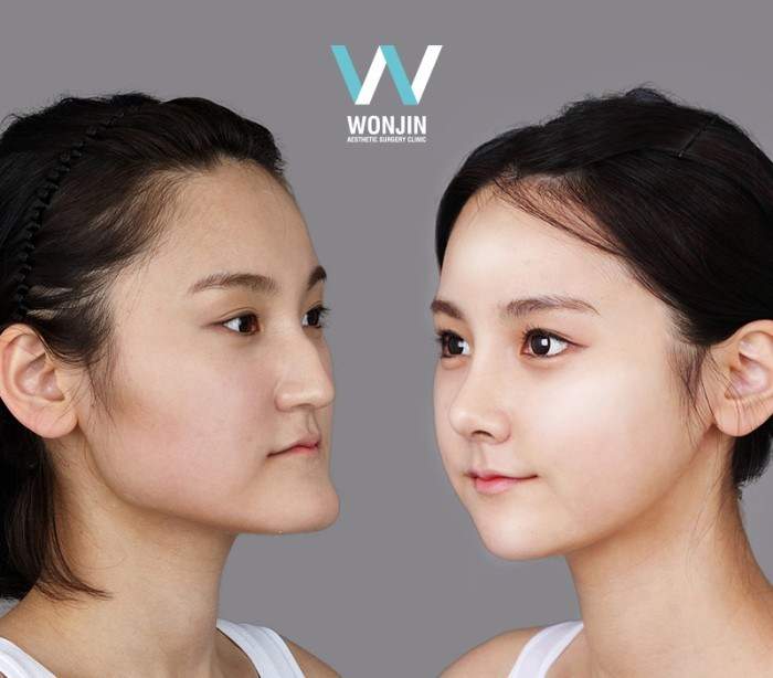 korean before and after plastic surgery photo - 1