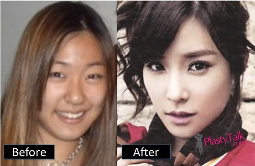 korean celebrity plastic surgery photo - 1