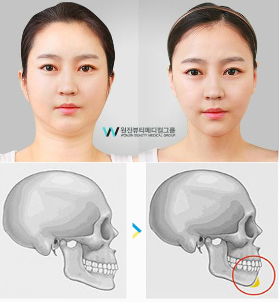 korean plastic surgery cost photo - 1