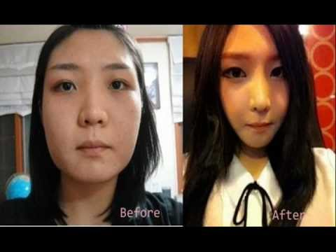 korean plastic surgery gone wrong photo - 1