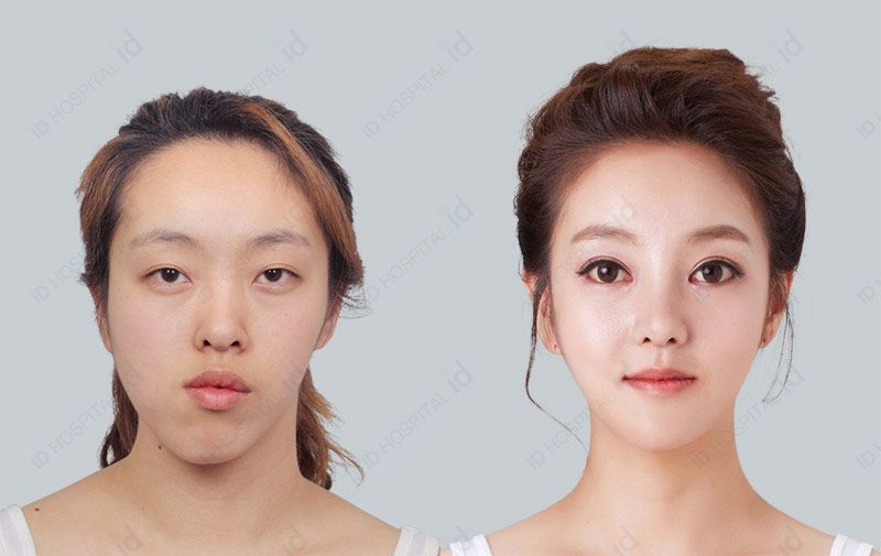 korean plastic surgery price photo - 1