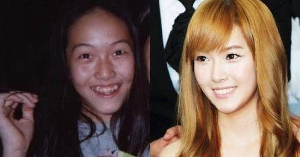 kpop plastic surgery before and after photo - 1