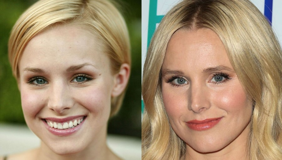kristen bell plastic surgery photo - 1