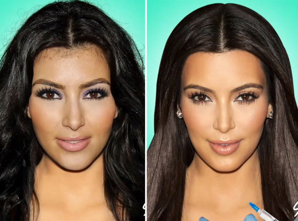 kylie jenner plastic surgery over the years photo - 1