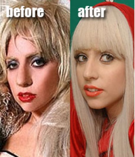 lady gaga plastic surgery photo - 1