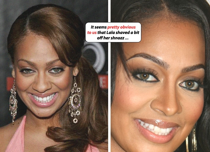 lala anthony plastic surgery photo - 1