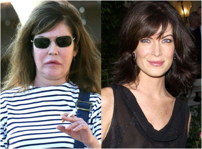 lara flynn boyle plastic surgery photo - 1