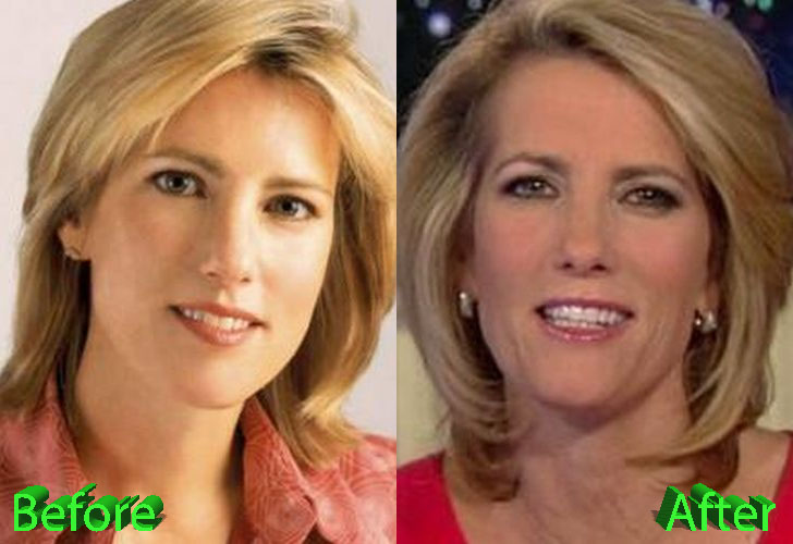 laura ingraham plastic surgery photo - 1