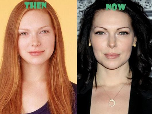 laura prepon plastic surgery photo - 1