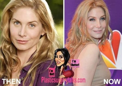 leah block plastic surgery photo - 1