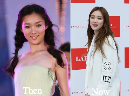 lee sung kyung plastic surgery photo - 1