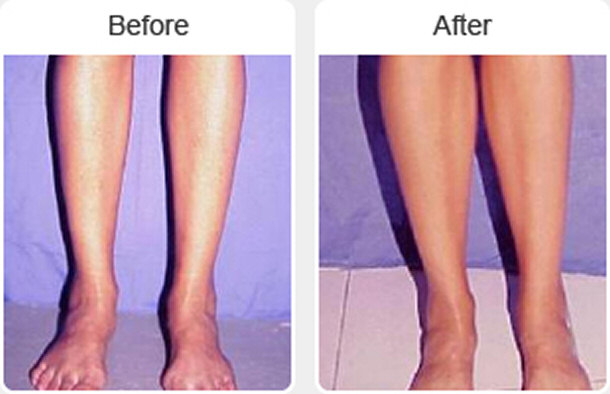 leg plastic surgery photo - 1