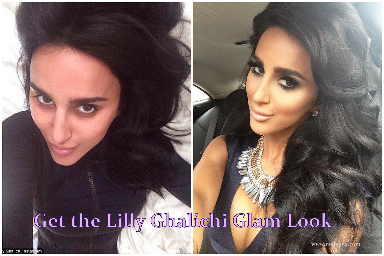 lilly ghalichi plastic surgery photo - 1