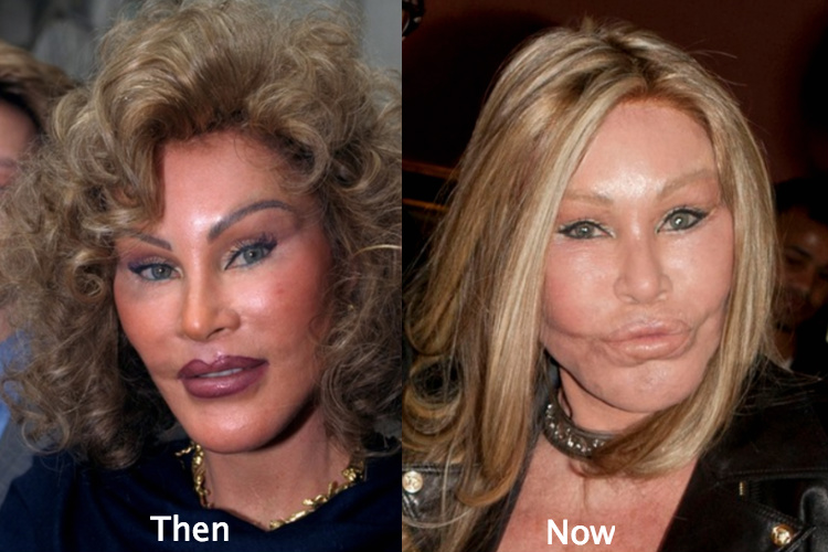 lion lady plastic surgery photo - 1