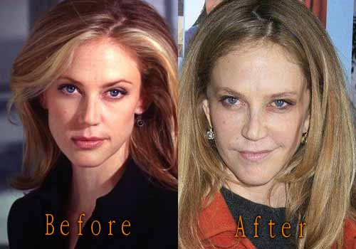 lip plastic surgery before and after photo - 1