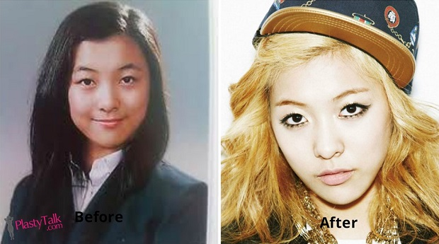 luna plastic surgery photo - 1