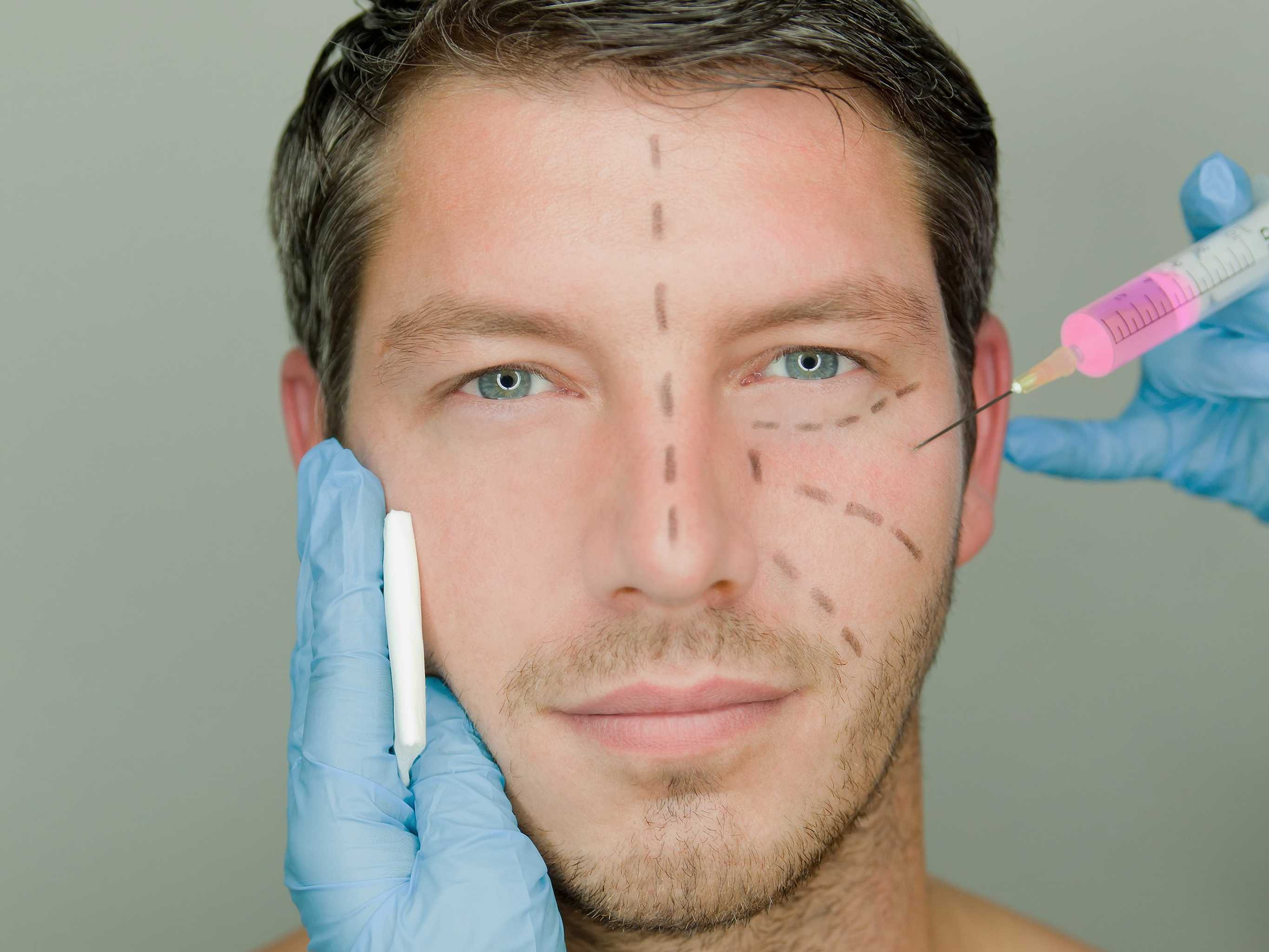 male cosmetic surgery photo - 1