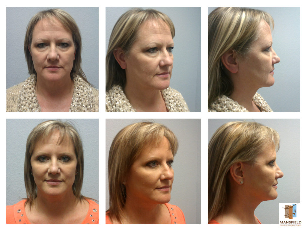mansfield cosmetic surgery center photo - 1