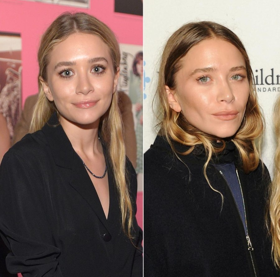 mary kate and ashley olsen plastic surgery photo - 1