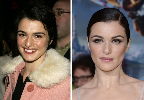 mary kate plastic surgery photo - 1