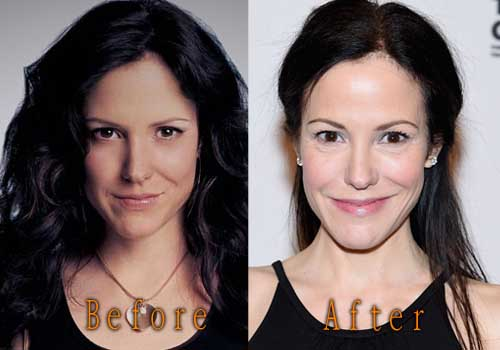 mary louise parker plastic surgery photo - 1