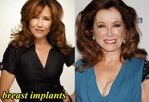 mary mcdonnell plastic surgery photo - 1
