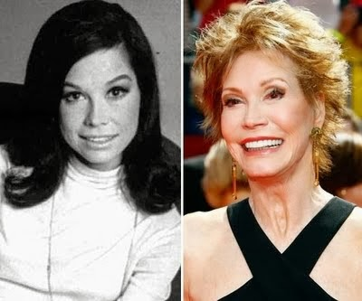 mary tyler moore plastic surgery photo - 1