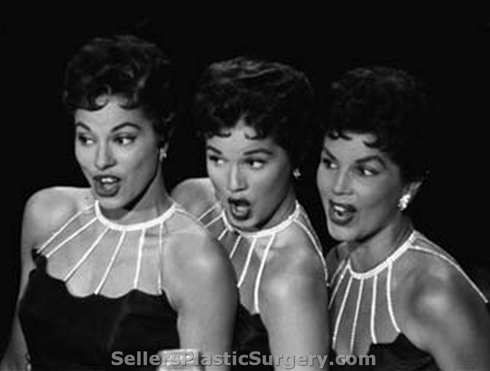 mcguire sisters plastic surgery photo - 1