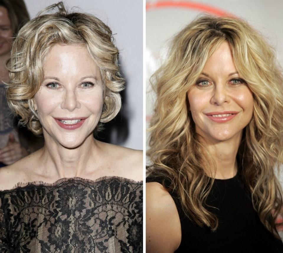 meg ryan before and after plastic surgery photo - 1