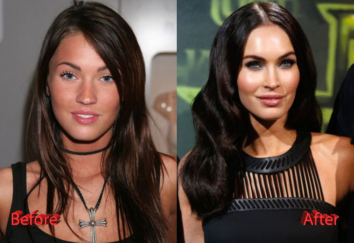 megan fox pre plastic surgery photo - 1