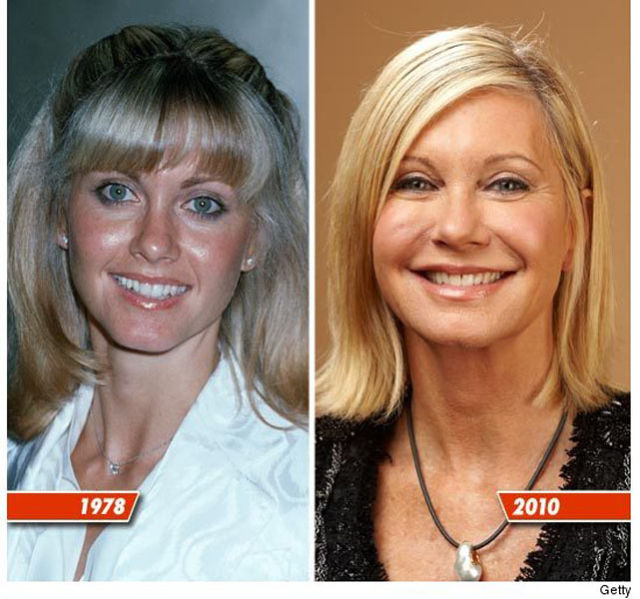 meghan fox plastic surgery photo - 1