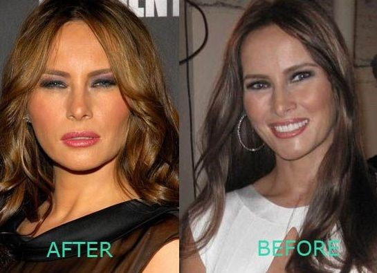 melania trump plastic surgery pics photo - 1