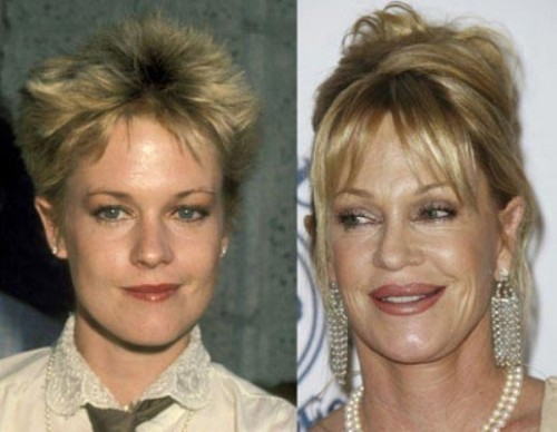 melanie griffith plastic surgery automata photo - 1