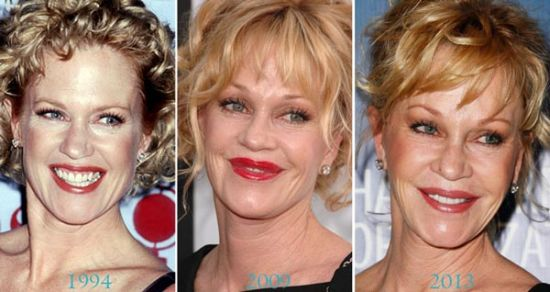 melanie griffith plastic surgery disaster photo - 1