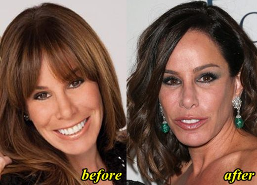melissa rivers plastic surgery photo - 1