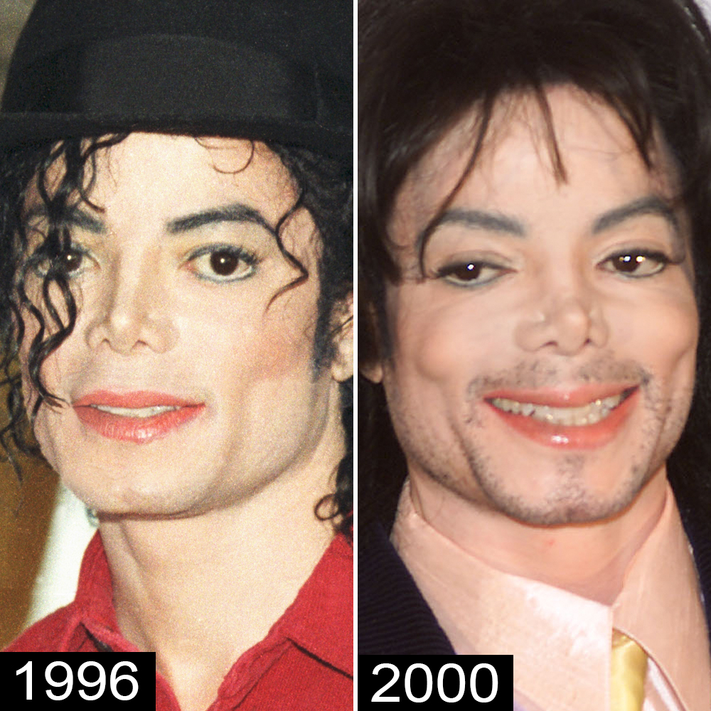 michael jackson before plastic surgery photo - 1