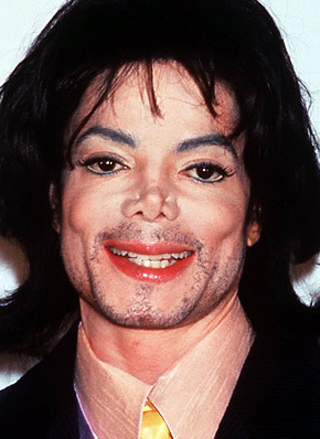 michael jackson plastic surgery over the years photo - 1