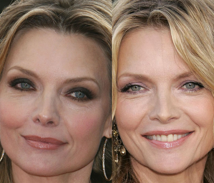 michelle pheiffer plastic surgery photo - 1