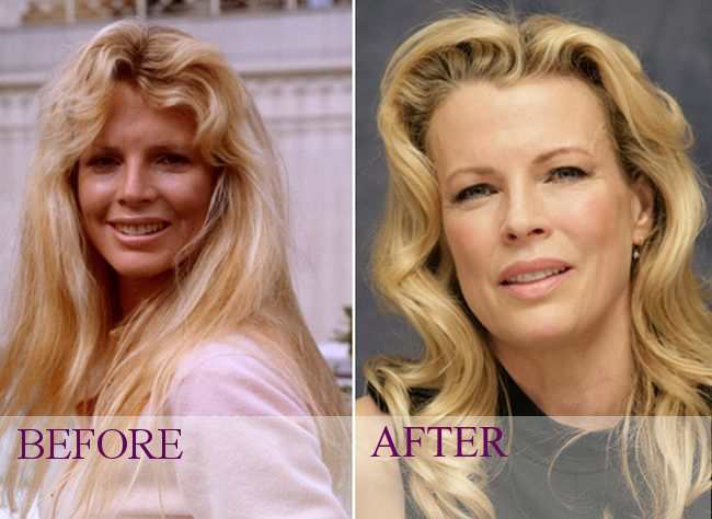 mickey rourke before plastic surgery photo - 1